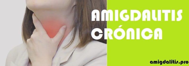 que es amigdalitis cronica