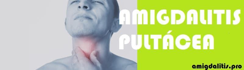 amigdalitis pultacea sintomas
